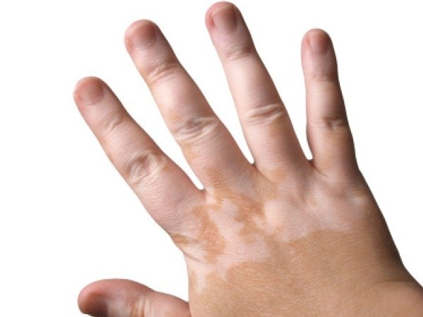 Skin problems and tips to cure Vitiligo